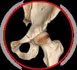 Hip Surgery - Jonathan Yerasimides M.D.